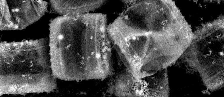 Electron micrograph diatoms